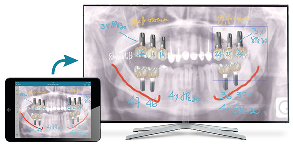 dentalpad ipad tele